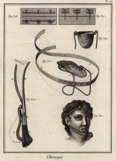 Хирургия. Наложение швов, бандаж для языка (Ивердонская энциклопедия. Том III. Швейцария, 1776 год)