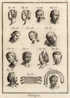 Хирургия. Различные виды перевязок на голове (Ивердонская энциклопедия. Том III. Швейцария, 1776 год)