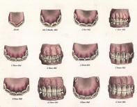фото зубы лошадиные