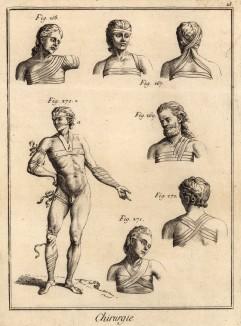 Хирургия. Способы перевязки (Ивердонская энциклопедия. Том III. Швейцария, 1776 год)