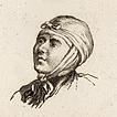 XVIII век. Операции и перевязки